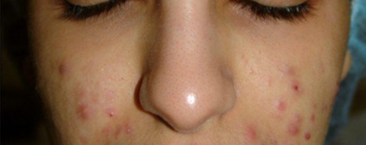 voor-na-acne_voor1_voorzijde