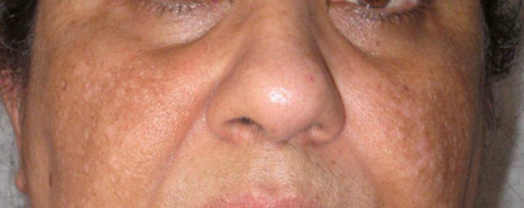 voor-na-hyperpigmentatie_voor1_voor